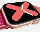 Wearables: Apple Watch pusht Markt für Smartwatches.