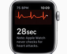 Apple Watch: Erkennt die Smartwatch bald Parkinson und erlaubt Diabetes Tracking?
